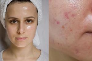 3 bước khắc phục da dầu nhưng thiếu ẩm khiến lỗ chân lông to và nổi mụn