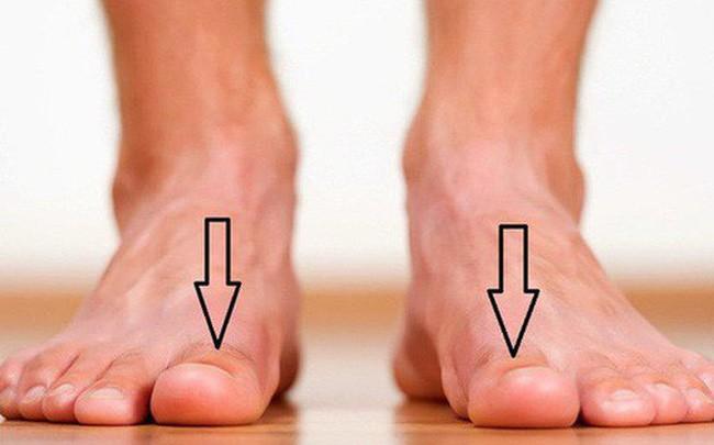 Dấu hiệu nhỏ trên bàn chân cảnh báo 'trọng bệnh', nhiều người chủ quan đến khi đi khám thì đã quá muộn