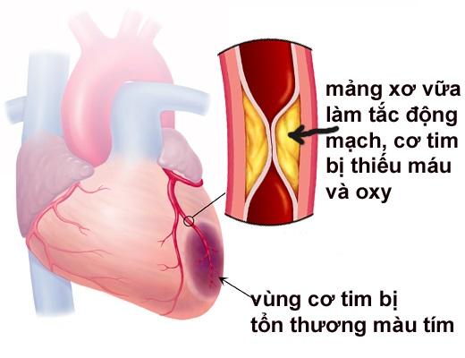 Thanh niên 31t đang khỏe mạnh bỗng lên cơn nhồi máu cơ tim: 8 dấu hiệu nhận biết sớm ai cũng cần biết
